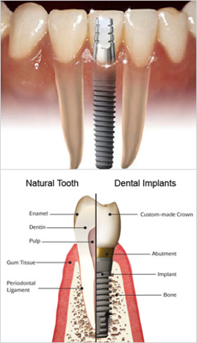 South Muskoka Dental Group dental implants
