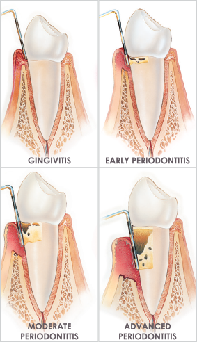 South Muskoka Dental Group periodontitis